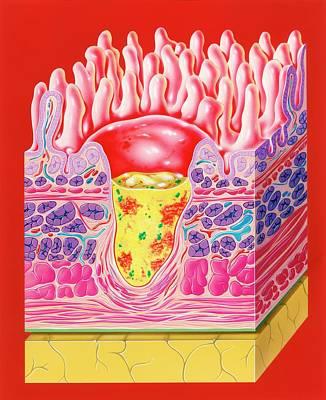 Intestinal Ulcer Art Print
