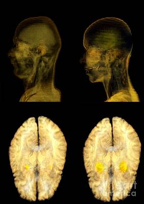 Infidelity Photograph - Jealousy Research, Mri Brain Scans by Thierry Berrod, Mona Lisa Production