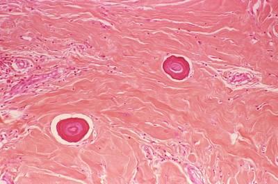 Fibrous Photograph - Juvenile Fibroma by Cnri