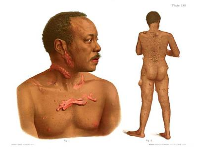 Keloids And Fibromas Art Print by Us National Library Of Medicine/science Photo Library