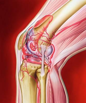 Articulation Photograph - Knee In Rheumatoid Arthritis by John Bavosi