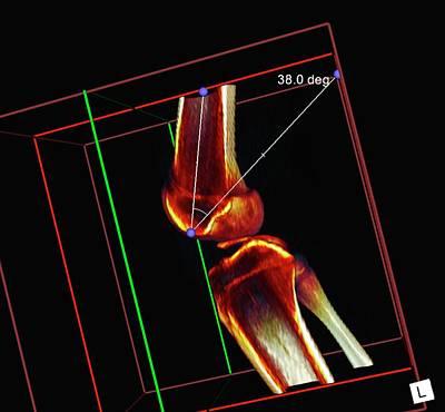 3-d Photograph - Knee Ligament Surgery by D & L Graphics