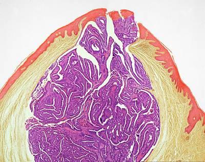 Vulva Photograph - Labial Cyst by Steve Gschmeissner