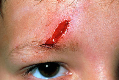 Laceration Above The Eye Of A 5 Year Old Boy Art Print by Dr P. Marazzi/science Photo Library