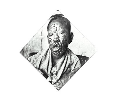 Leprosy Patient Art Print by National Library Of Medicine