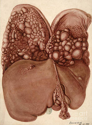 Liver And Diaphragm Cancer Growths Art Print by Wellcome Images