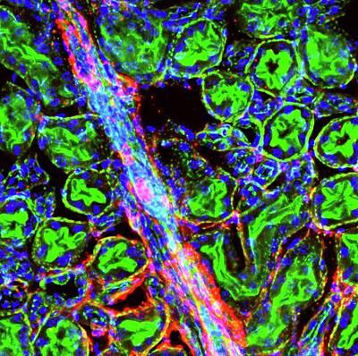 Liver Arteriole Art Print by R. Bick, B. Poindexter, Ut Medical School