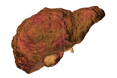 Alcoholism Wall Art - Photograph - Liver Cirrhosis by Kateryna Kon/science Photo Library
