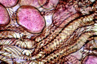 Liverwort (conocephalum Conicum) Spores Art Print
