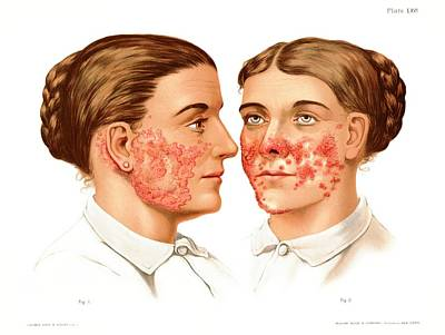 Lupus Erythematosus And Vulgaris Art Print by Us National Library Of Medicine/science Photo Library