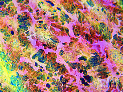 Photograph - Malignant Melanoma by Dr Cecil H Fox