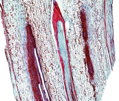 Marrow Stem Art Print by Dr Keith Wheeler