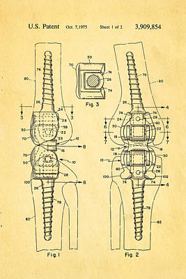 Martinez Photograph - Martinez Knee Implant Prosthesis Patent Art 1974 by Ian Monk