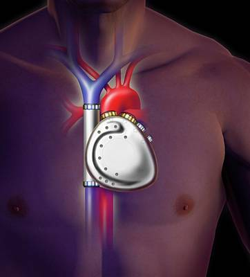 Electronic Photograph - Mechanical Heart Pump In A Human Body by David Gifford