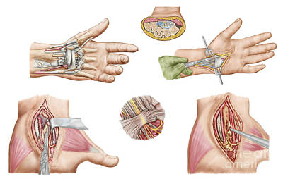 Median Nerves Digital Art - Medical Illustration Showing Carpal by Stocktrek Images