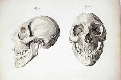 Microcephalic Skull Flores Man Zika Virus Art Print