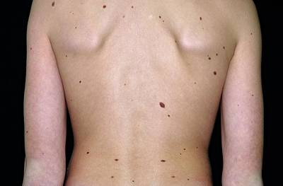 Torso Wall Art - Photograph - Moles On The Skin Of The Torso by Dr P. Marazzi/science Photo Library