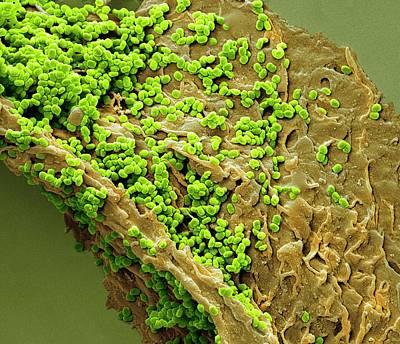 Molluscum Contagiosum Art Print by Steve Gschmeissner