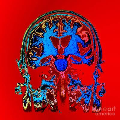 Photograph - Mri Of Alzheimers Disease by Living Art Enterprises