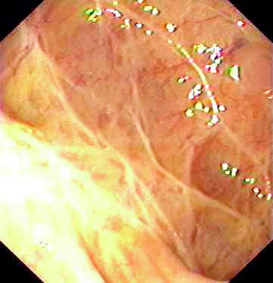 Endoscope View Photograph - Mucosal Scars In Ulcerative Colitis by Gastrolab