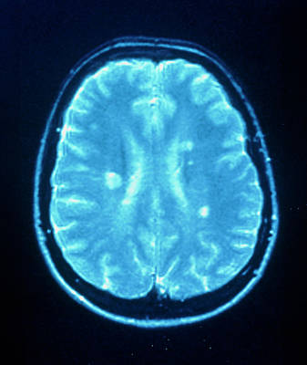 Multiple Sclerosis Art Print by Simon Fraser/neuroradiology Department, Newcastle General Hospital/science Photo Library