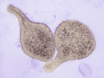 Mycoplasma Genitalium Bacteria Art Print by Thomas Deerinck, Ncmir