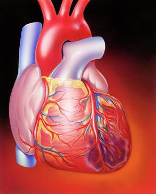 Myocardial Infarction Art Print