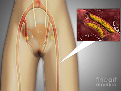 Disorder Digital Art - Narrowed Artery Near Leg by Stocktrek Images