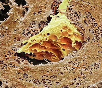 Nasal Cartilage Art Print