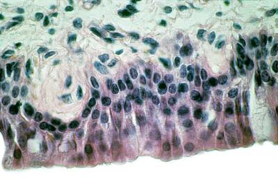 Cilia Photograph - Nasal Lining by Overseas/collection Cnri/spl