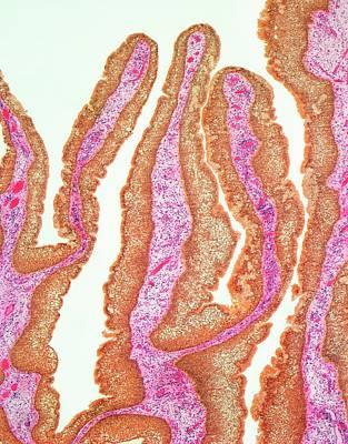 Nasal Papilloma Art Print by Steve Gschmeissner