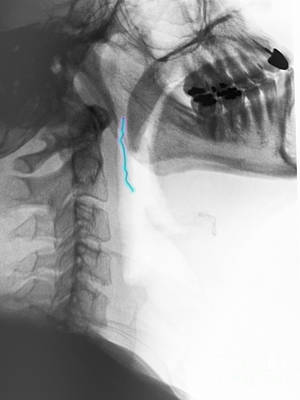 Neck X-ray Of Swallowed Paper Clip Art Print