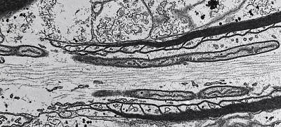 Nerve, Tem Art Print