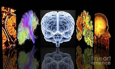 Neurology Slide Show Art Print by Alfred Pasieka