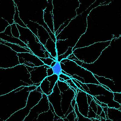 Light Micrograph Photograph - Neuron by Dr. Chris Henstridge