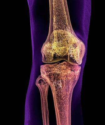 False-colored Photograph - Normal Adult Knee by K H Fung