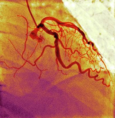 Normal Blood Vessels Art Print by Dr P. Marazzi