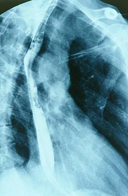 Opaque White Photograph - Normal Oesophagus by St Bartholomew Hospital