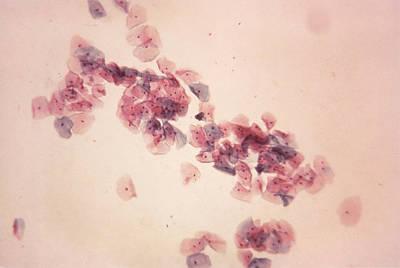 Normal Pap Smear, Lm Art Print