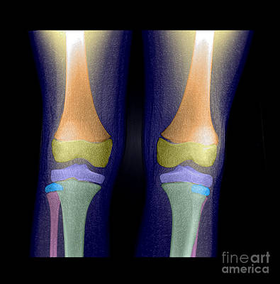 Kids Bones Photograph - Normal Pediatric Legsknees, X-ray by Living Art Enterprises