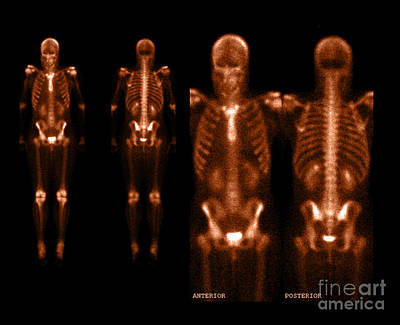 Photograph - Nuclear Bone Scan by Living Art Enterprises
