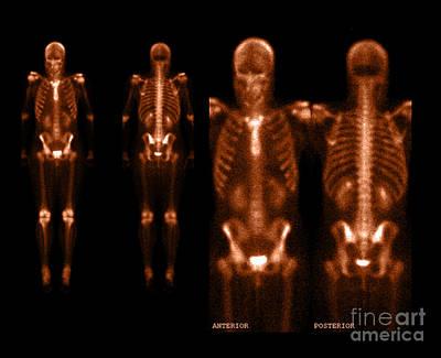 Photograph - Nuclear Bone Scan by Living Art Enterprises