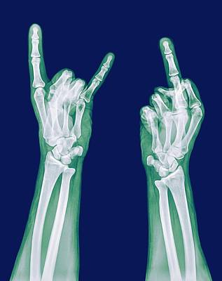 Radiographs Photograph - Obscene Gestures X-ray by Photostock-israel