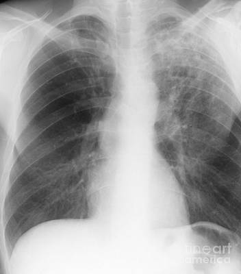 Old And New Tuberculosis, X-ray Art Print
