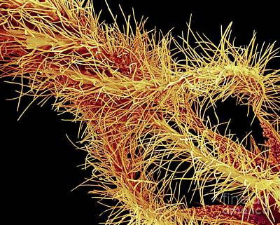 Fused Photograph - Oleander Flower Anthers, Colored Sem by Susumu Nishinaga