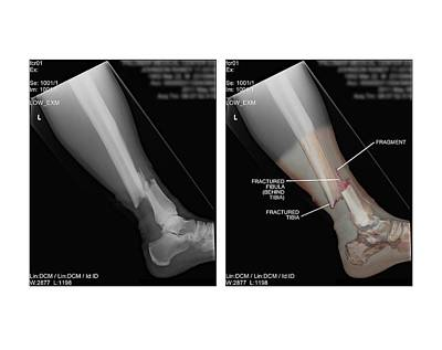 X-rays Of Photograph - Open Fracture Of Tibia And Fibula by John T. Alesi