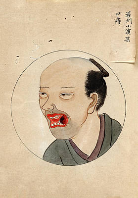 Oral Cancer Patient Print by National Library Of Medicine