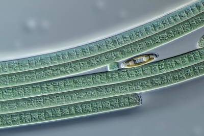 Diatoms Photograph - Oscillatoria And Navicula by Gerd Guenther