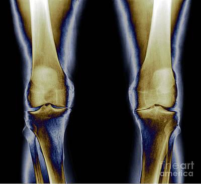 Photograph - Osteoarthritis, Both Knees by Living Art Enterprises