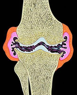 Osteoarthritis Art Print